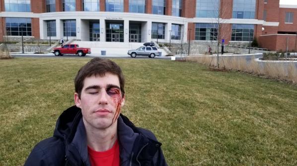 Simulated facial injury